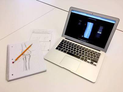 Participants will be asked to draw elbow anatomy, fractures, and other signs of trauma before and/or after they receive feedback on their diagnoses, depending on their assigned experimental treatment. Analyses on learning outcomes and performance over the set of 40 cases will determine which treatment, and which utility of drawing during learning, is most effective. M. Cirigliano © 2017