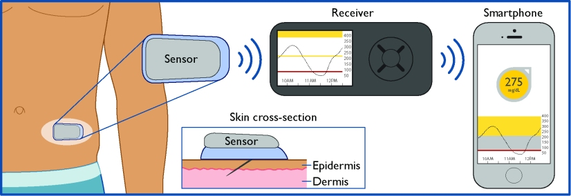 Flow of Glucose Data between CGM sensor, receiver, and smartphone. C. Lorenzo © 2017